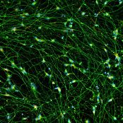 Quick-Neuron™ Excitatory - Human iPSC-derived Neurons (M, 38 yr donor) - Healthy Control
